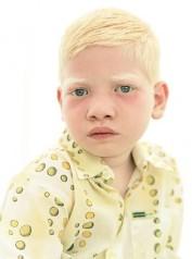 Albino Kulshan_s